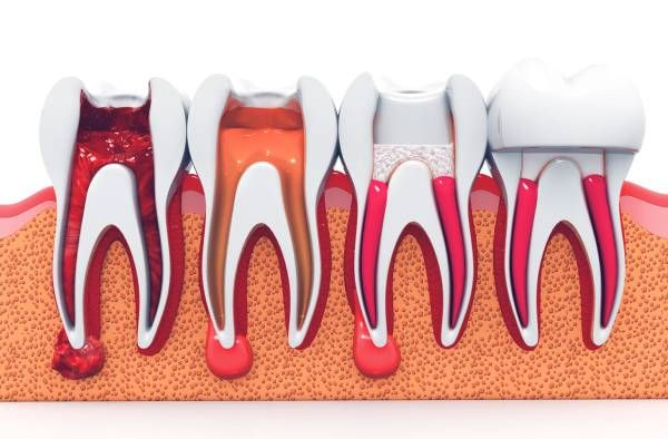 tooth and gum damage