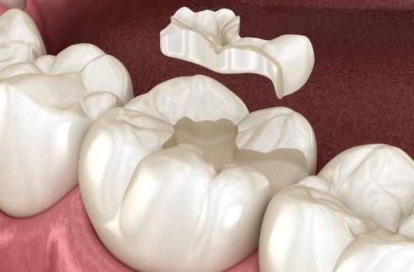 tooth repair in glenview & northbrook