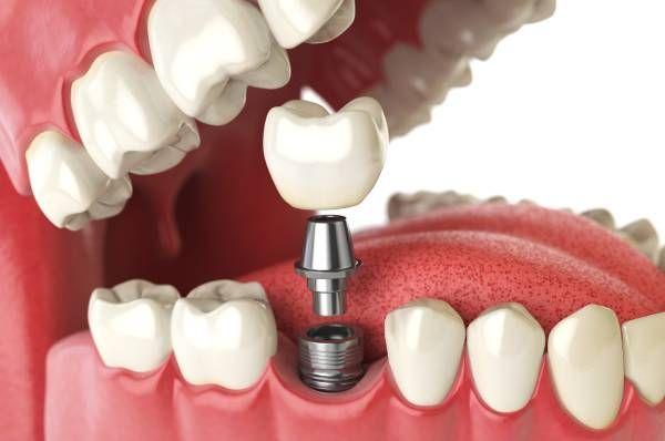 dental implants in Glenview & Northbrook