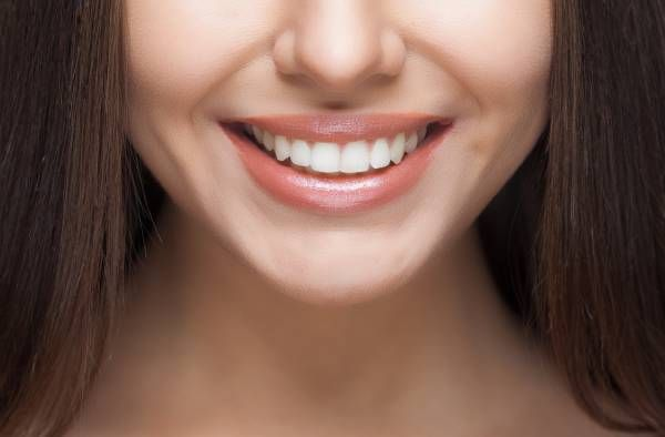 Perfect Smile Makeover