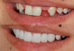 Dental Office_Veneers_Glenview