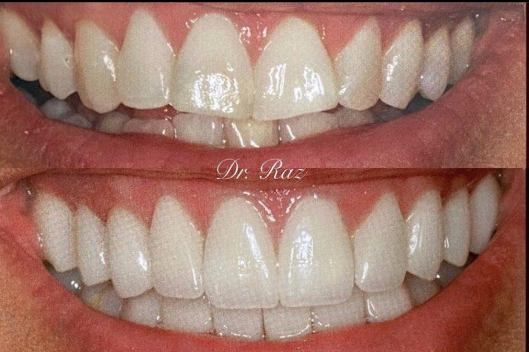 Porcelain Veneers Used To Improve Worn Down, Crooked, & Yellow Teeth