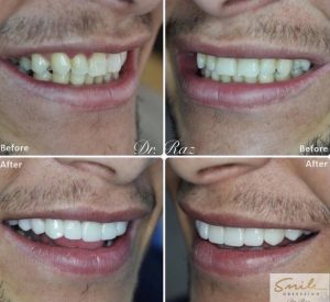 cosmetic_dentistry_before_and_after