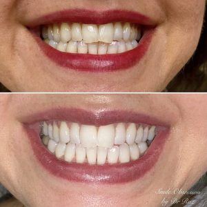 teeth whitening in glenview