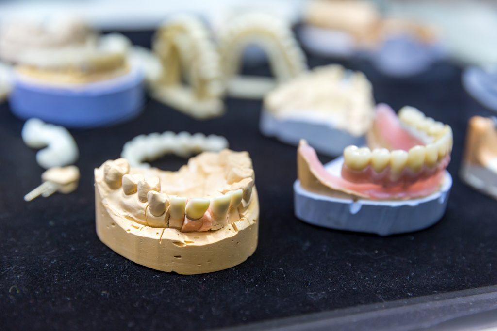 Denture, prosthetic dentistry, dental implants