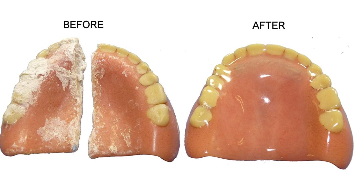 Denture Repairs In glenview