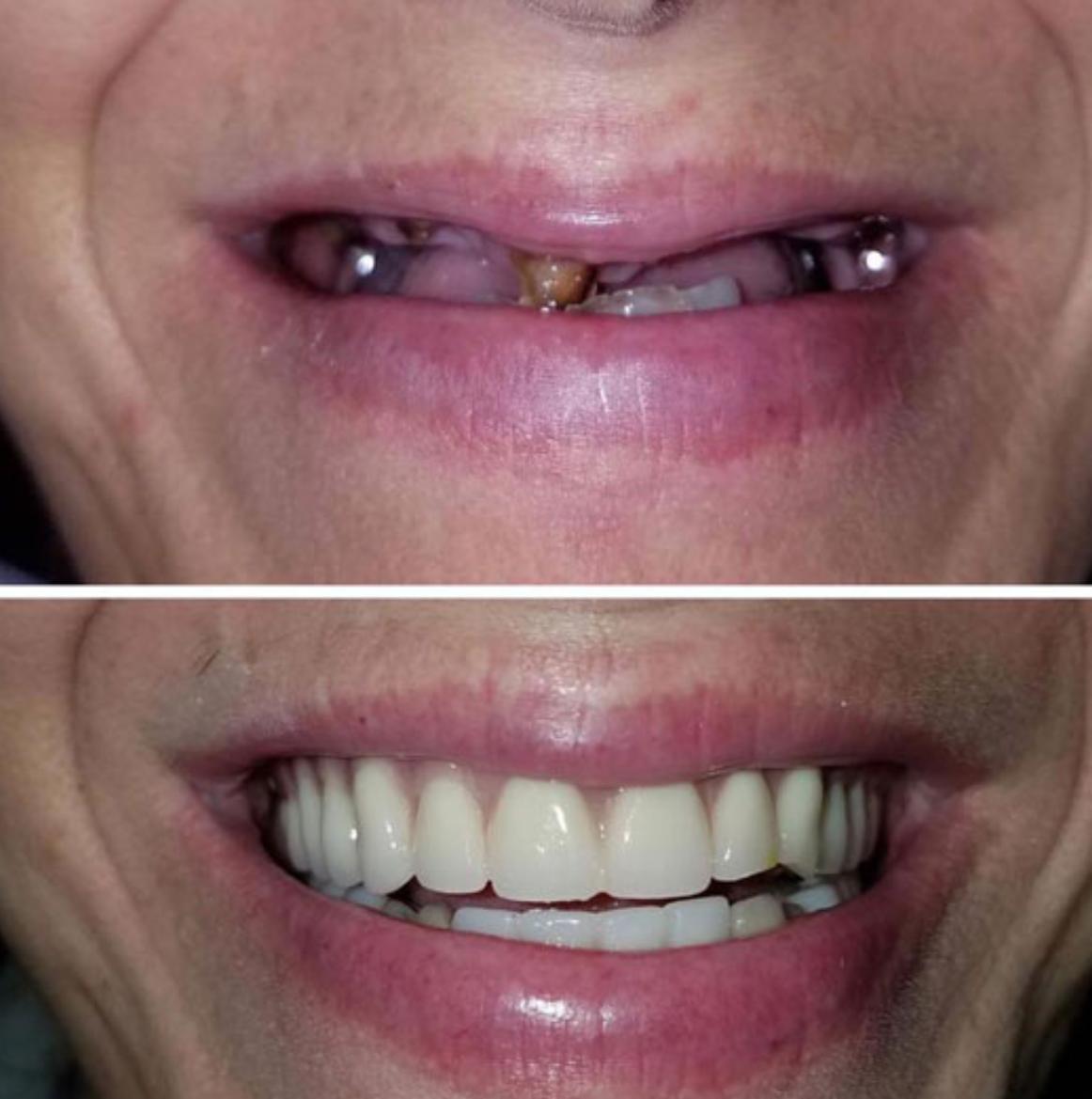 complete smile makeover dentures