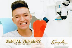 Dental Veneers are they permanent